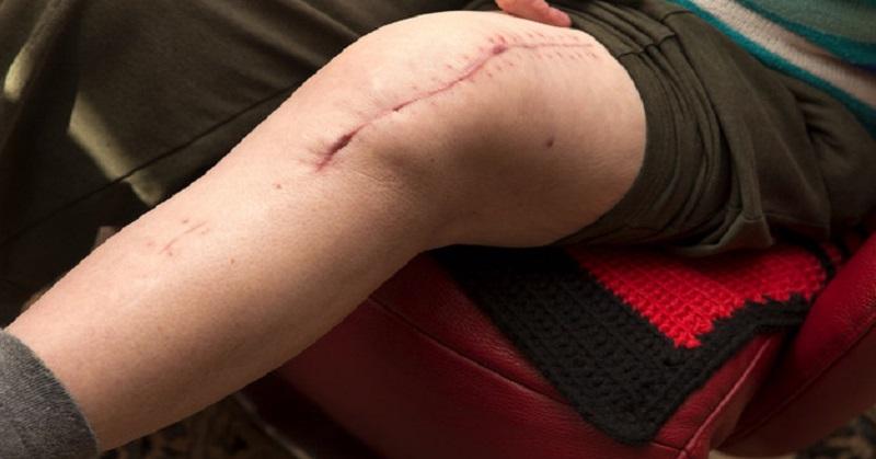 https: img-z.okeinfo.net content 2017 01 11 56 1589055 peneliti-temukan-metode-sembuhkan-luka-tanpa-bekas-di-kulit-edbUWc8BZM.jpg