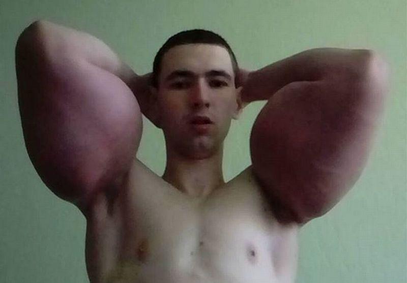 https: img-z.okeinfo.net content 2017 11 14 18 1813955 nekat-suntik-otot-dengan-cairan-khusus-pria-rusia-malah-tampil-seperti-popeye-GlSi67h0bh.jpg