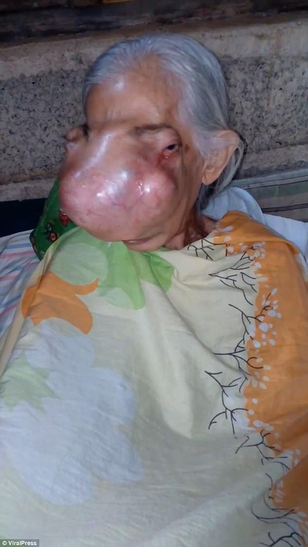 https: img-z.okeinfo.net content 2017 11 14 481 1813633 kasihan-wajah-nenek-ini-tertutupi-tumor-ganas-begini-penampakannya-GifesHHFj6.jpg