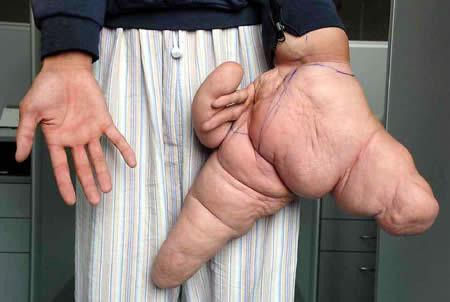 https: img-z.okeinfo.net content 2018 04 15 194 1886831 5-manusia-dengan-ukuran-anggota-tubuh-langka-salah-satunya-jari-terbesar-di-dunia-oFjvhnkVVc.jpg