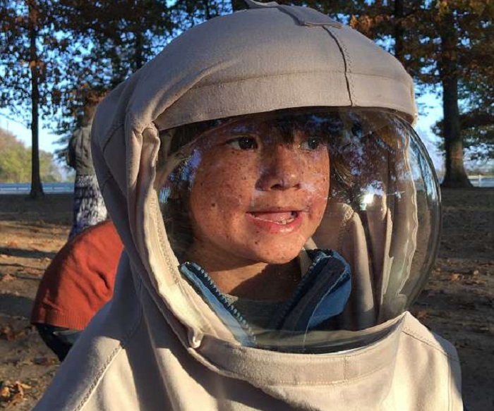 https: img-z.okeinfo.net content 2018 04 16 481 1887189 perjuangan-bocah-7-tahun-yang-idap-alergi-matahari-setiap-hari-pakai-baju-astronot-CHFoHDR6sU.jpg