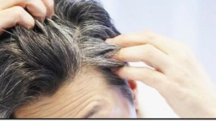 https: img-z.okeinfo.net content 2018 05 08 56 1896032 penyebab-tumbuhnya-uban-di-rambut-karena-emosi-38OsOEnIOu.jpg