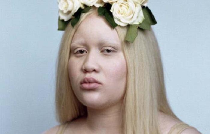 https: img-z.okeinfo.net content 2018 06 11 196 1909242 kisah-perempuan-albino-melawan-bully-hingga-rencana-bunuh-dirinya-yang-menakutkan-viral-di-medsos-IzJPinsM57.jpg