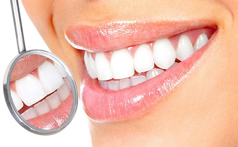 1. Menjaga kebersihan gigi 5253cd2de5