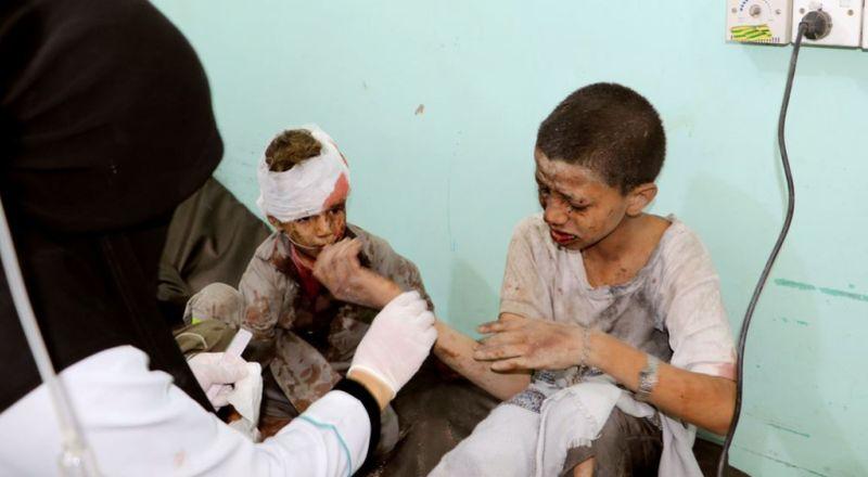 https: img-z.okeinfo.net content 2018 08 10 18 1934641 43-orang-tewas-akibat-rudal-arab-saudi-hantam-pasar-di-yaman-xGhImo3bhP.jpg