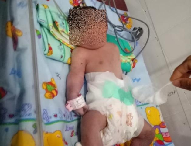 https: img-z.okeinfo.net content 2018 09 13 340 1950200 bayi-bermata-satu-dan-tanpa-hidung-lahir-di-mandailing-natal-sumut-EEFRLeXQQ8.jpg