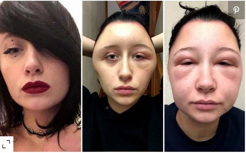 https: img-z.okeinfo.net content 2018 12 03 481 1986258 alergi-cat-rambut-kepala-wanita-ini-membesar-2-kali-lipat-MUiqzX9uL9.jpg