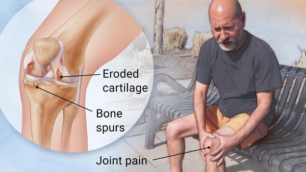 https: img-z.okeinfo.net content 2019 04 12 481 2042749 berbeda-dengan-osteoporosis-osteoartritis-bisa-sebabkan-disabilitas-zNqZVpoBDp.jpg
