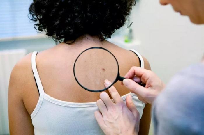 https: img-z.okeinfo.net content 2019 05 01 481 2050290 jangan-diremehkan-6-jenis-benjolan-pada-kulit-ini-bisa-berbahaya-FWfw5HYVje.jpg