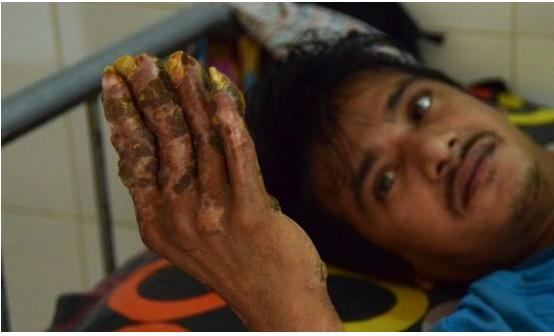 https: img-z.okeinfo.net content 2019 06 26 481 2071127 kesakitan-manusia-pohon-asal-bangladesh-minta-tangannya-diamputasi-oJkAWpSo04.png