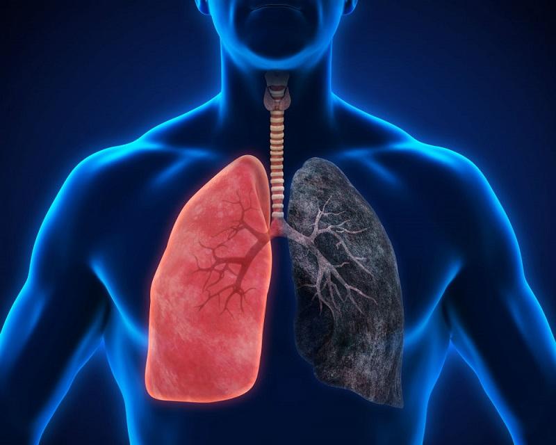 https: img-z.okeinfo.net content 2019 08 13 481 2091379 angka-penderita-makin-meningkat-kenali-dua-tipe-kanker-paru-qYbEpPgQO1.jpg
