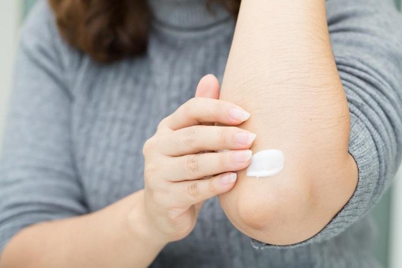 https: img-z.okeinfo.net content 2019 08 14 481 2091793 waspada-dermatitis-atopik-kenali-penyebabnya-vr6j0JHkHj.jpg