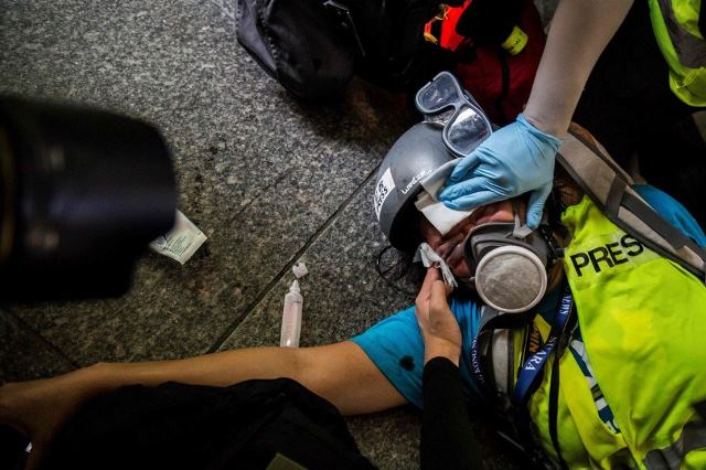 https: img-z.okeinfo.net content 2019 09 30 18 2111022 cerita-veby-mega-indah-jurnalis-indonesia-yang-tertembak-dalam-demontrasi-hong-kong-hykM8z5H1c.JPG