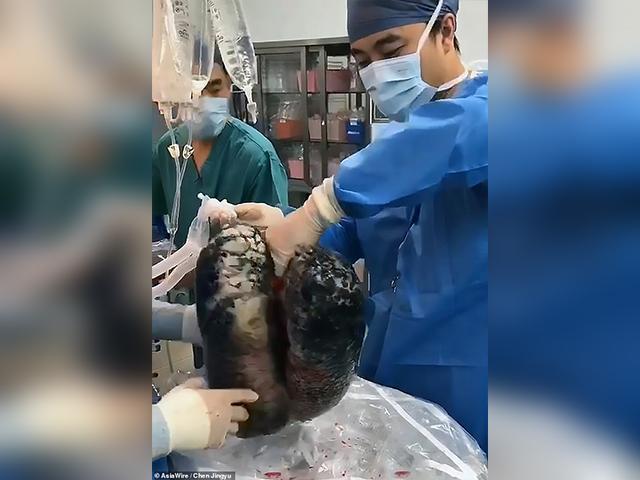 https: img-z.okeinfo.net content 2019 11 19 18 2131732 paru-paru-hitam-akibat-merokok-30-tahun-viral-BSMIPXyMGE.jpg