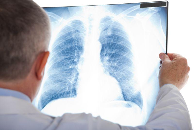 https: img-z.okeinfo.net content 2020 01 21 481 2155886 dari-asal-usul-hingga-tenaga-kesehatan-tertular-ini-5-fakta-seputar-pneumonia-wuhan-ZBJeKaOGCm.jpg