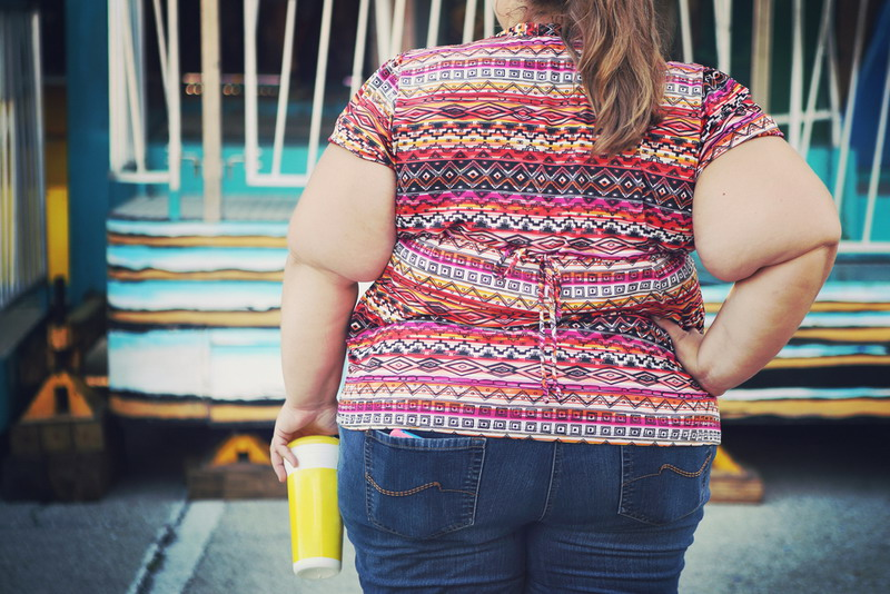 Obesitas (Shutterstock)