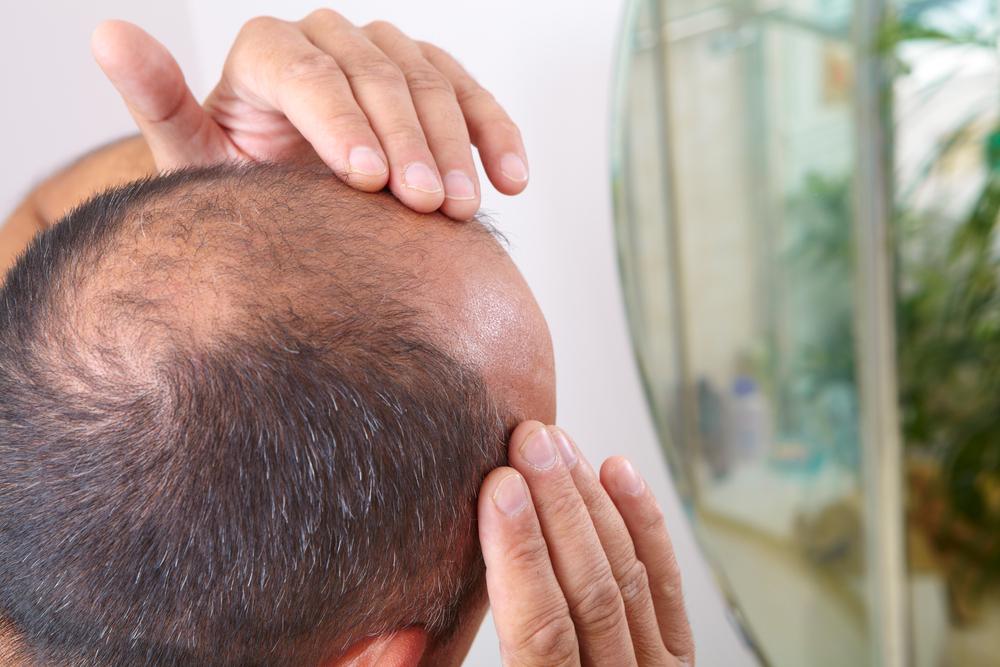 Penelitian ini menguji 87 pria yang mengalami kebotakan atau androgenetic alopecia (AGA).