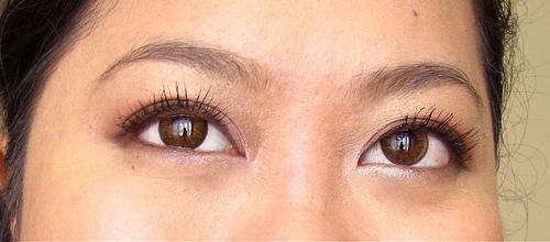 Mata Sering Berair Hati Hati Bisa Jadi Kamu Terkena Autoimun Okezone Lifestyle