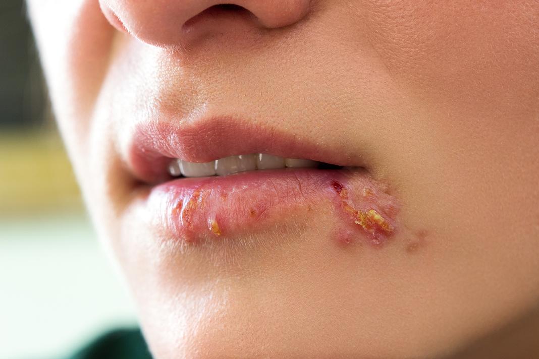 6 Jenis Penyakit Herpes Yang Harus Diwaspadai Bisa Muncul Di Wajah Juga Lho Okezone Lifestyle