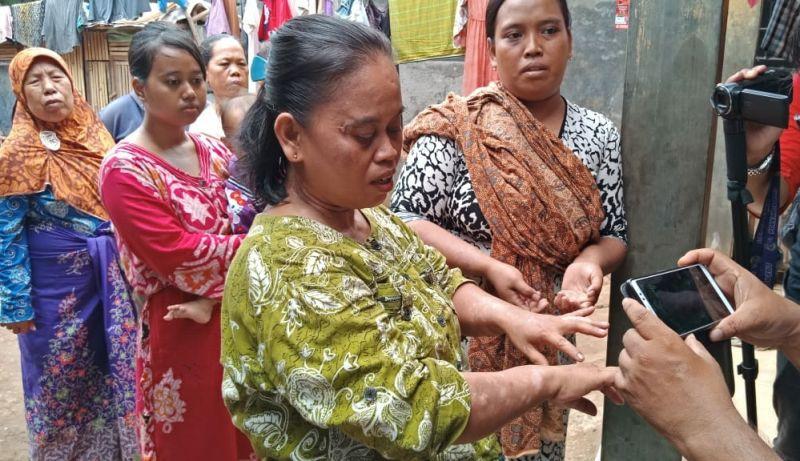 Warga Terdampak Air Mengandung Limbah di Kampung Picung (foto: Anggun T/Okezone)
