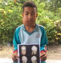 Remaja Ini Bertarung Melawan Tumor Tulang Rahang di Tengah Himpitan Ekonomi