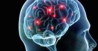 Teknologi Pembaca Pikiran Bantu Pasien Stroke Pulihkan Daya Gerak Tangan