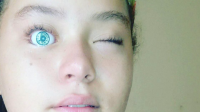 Gadis Ini Nekat Masukkan Mata Boneka Barbie ke Matanya, Lihat Apa yang Terjadi!