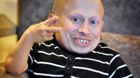 Verne Troyer, Pemeran Mini-Me di Austin Power Meninggal Dunia