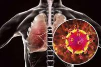4 Orang Meninggal Akibat Virus Korona di Italia