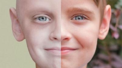 Deteksi Dini Kanker pada Anak Sebelum Terlambat