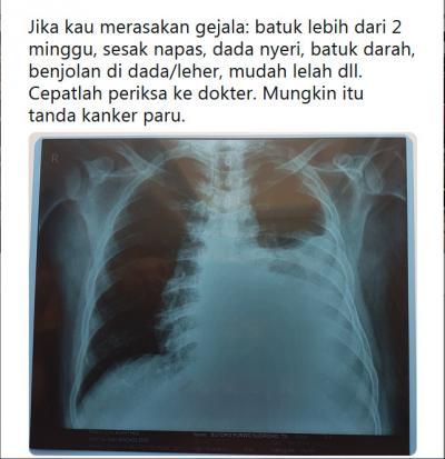 Sutopo Purwo Curhat Kanker Paru-Paru di Medsos, Netizen: Setiap Hembusan Bapak Bernilai Ibadah, Semangat Pak!