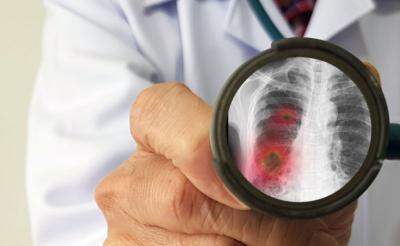 Epidemi Virus Wuhan Diperkirakan 10 Kali Lebih Buruk dari SARS