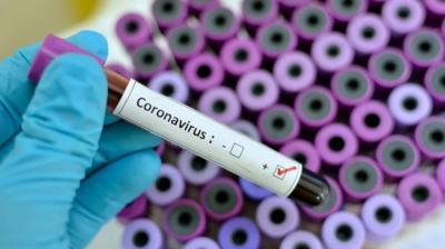 WN Jepang Terinfeksi Mutasi COVID-19, Kemenkes Beberkan Alasannya