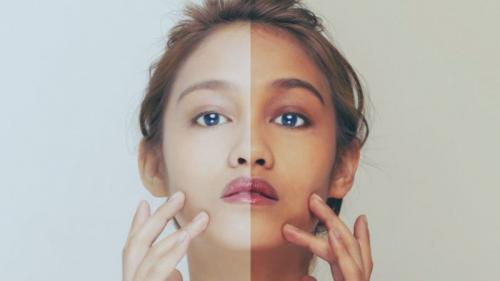 Semakin hitam kulitmu, pastinya akan lebih terhindar dari sinar ultraviolet yang berlebihan.