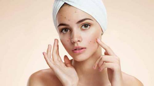 aturan harus berapa kali mencuci muka saat berjerawat sebenarnya tidak jauh berbeda dengan aturan umumnya.