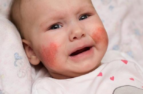 Bayi dengan pipi merah
