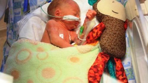 Bayi prematur