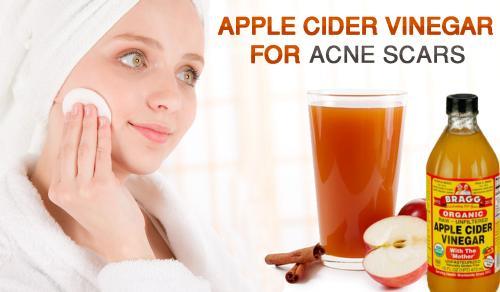 Satu sendok teh cuka apel dan air dapat membuat keajaiban bagi kulit kamu.