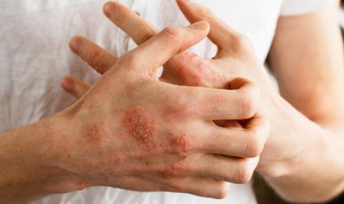Ilustrasi penyakit kulit eksim. (Foto: Health)