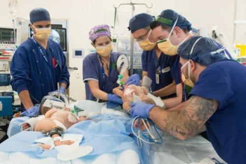 Operasi bayi kembar Nima dan Dawa Pelden. (Foto: RCH Melbourne)