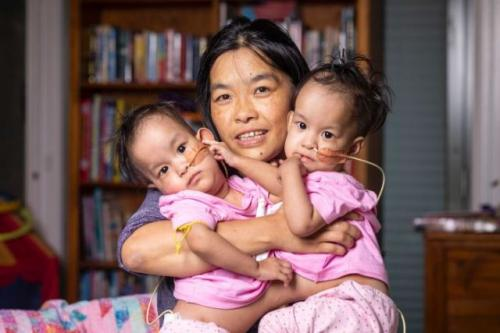 Bayi kembar Nima dan Dawa Pelden. (Foto: Daniel Pockett/ABC News)