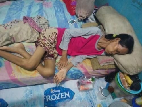 Sunarsi saat Berjuang Melawan Penyakitnya (Foto: Wijayakusuma/Okezone)