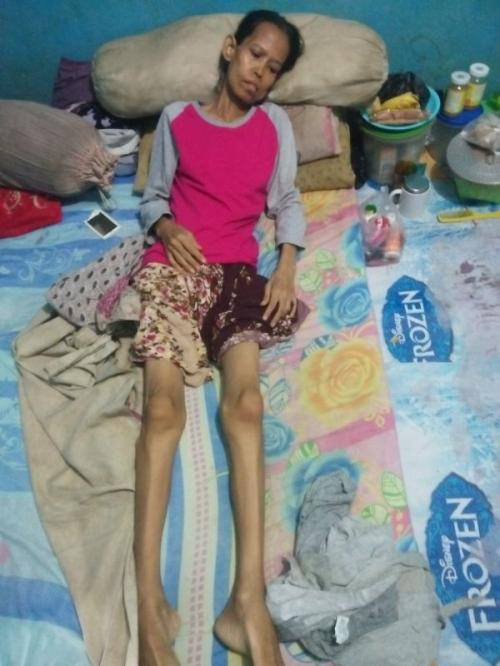 Sunarsih saat Berjuang Melawan Penyakitnya (Foto: Wijayakusuma/Okezone)