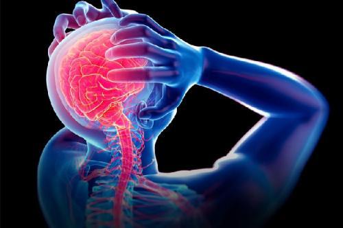 Aplikasi bantu kelola migrain