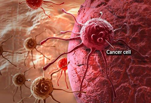 Sel kanker