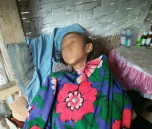 Selfi Agista Putri, hanya bisa terbaring lemas di ke diamannya Desa Pandansari, Kecamatan Poncokusumo, Kabupaten Malang (foto: Avirista Midaada/Okezone)
