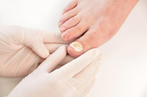 Sakit kuku kaki
