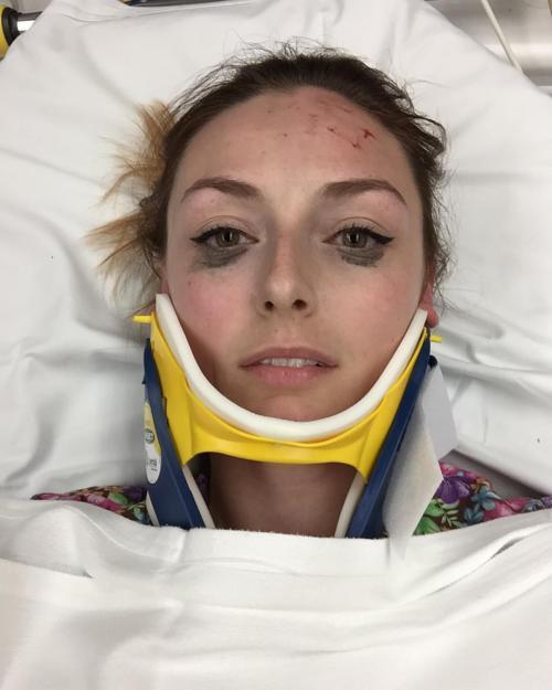 Shelby kecelakaan