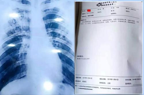 Mereka pun memaksa Du untuk menjalani tes di rumah sakit Hohhot.