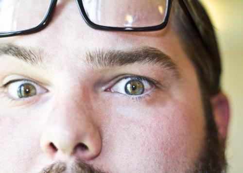 Namun, dia memiliki deretan bulu mata ganda, mutasi genetik yang langka.